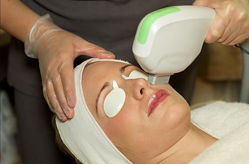 Female undergoing skin rejuvenation IPL treatment