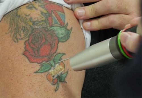 Tattoo removal in progress